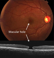 Figure 2: Colour image of macular hole(top) and cross section view with OCT(bottom)
