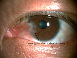Pterygium in a patient's left eye